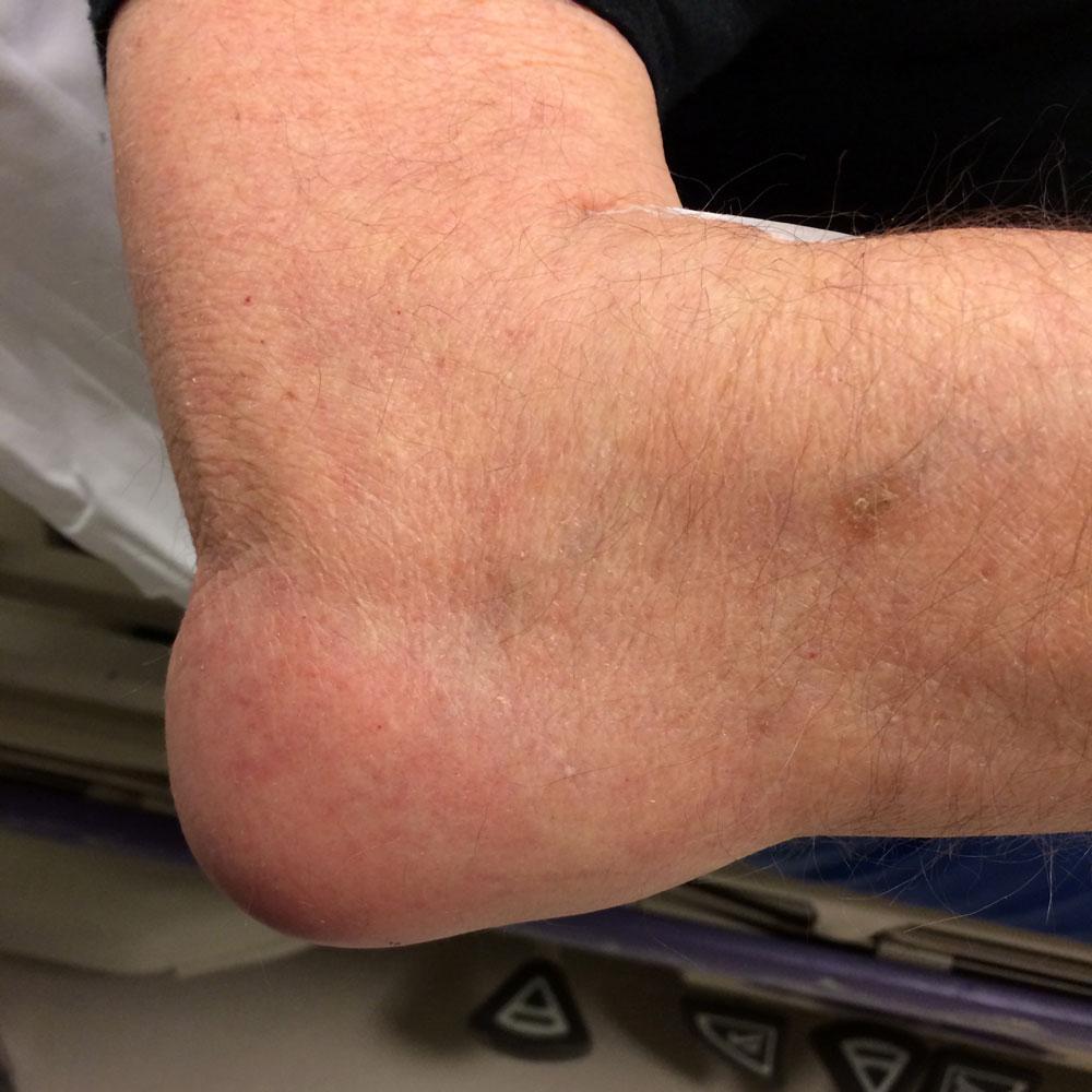 воспаление на коже локтевого сустава